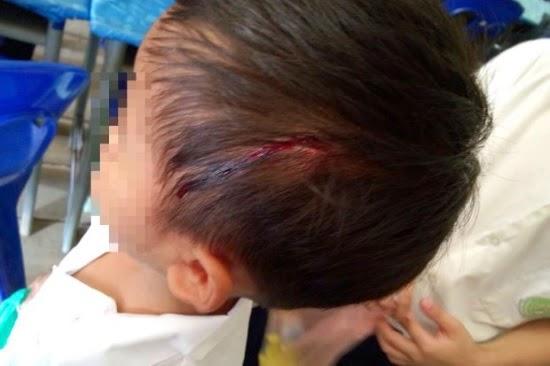 Siasatan Dijalankan Setelah Gambar Murid Dengan Kepala Berdarah Di Sabah Jadi Viral