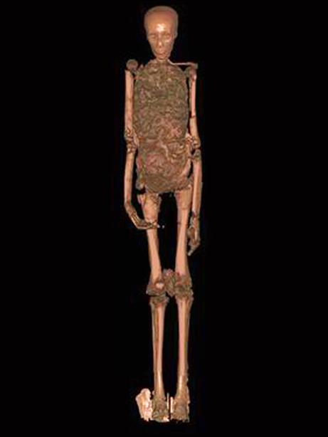 King Tutankhamun: Tut's Skeleton