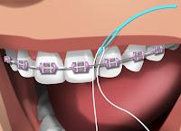 lubbock braces