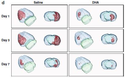 写真:DHAは脳梗塞を防ぐ。