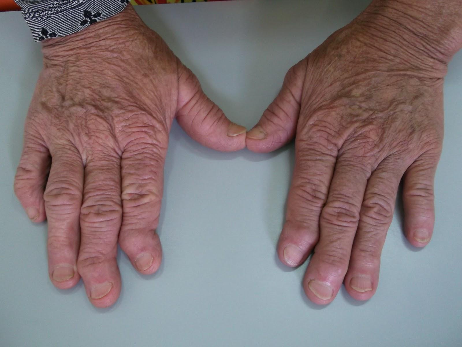 artrose o que é