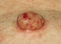 melonoma, causas del melanoma,     tipos de melanoma, sintomas de melanoma, tratamiento de melanoma,