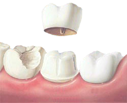 Dentist In Chennai Thangams Dental Clinic
