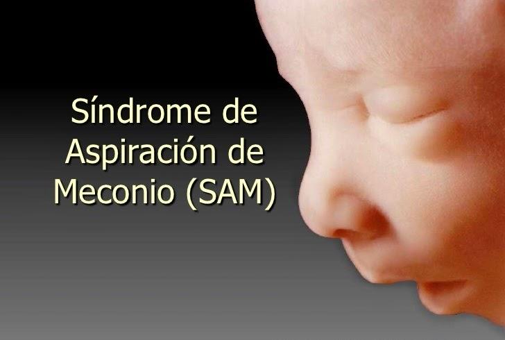 Síndrome de aspiracion de meconio (SAM)