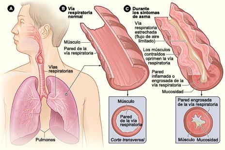 Asma, asma bronquial, bronquitis, bronquitis asmática