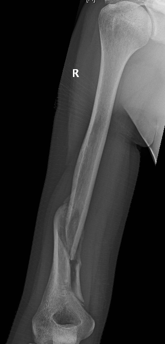 humerus spiral fracture recovery, Human Body