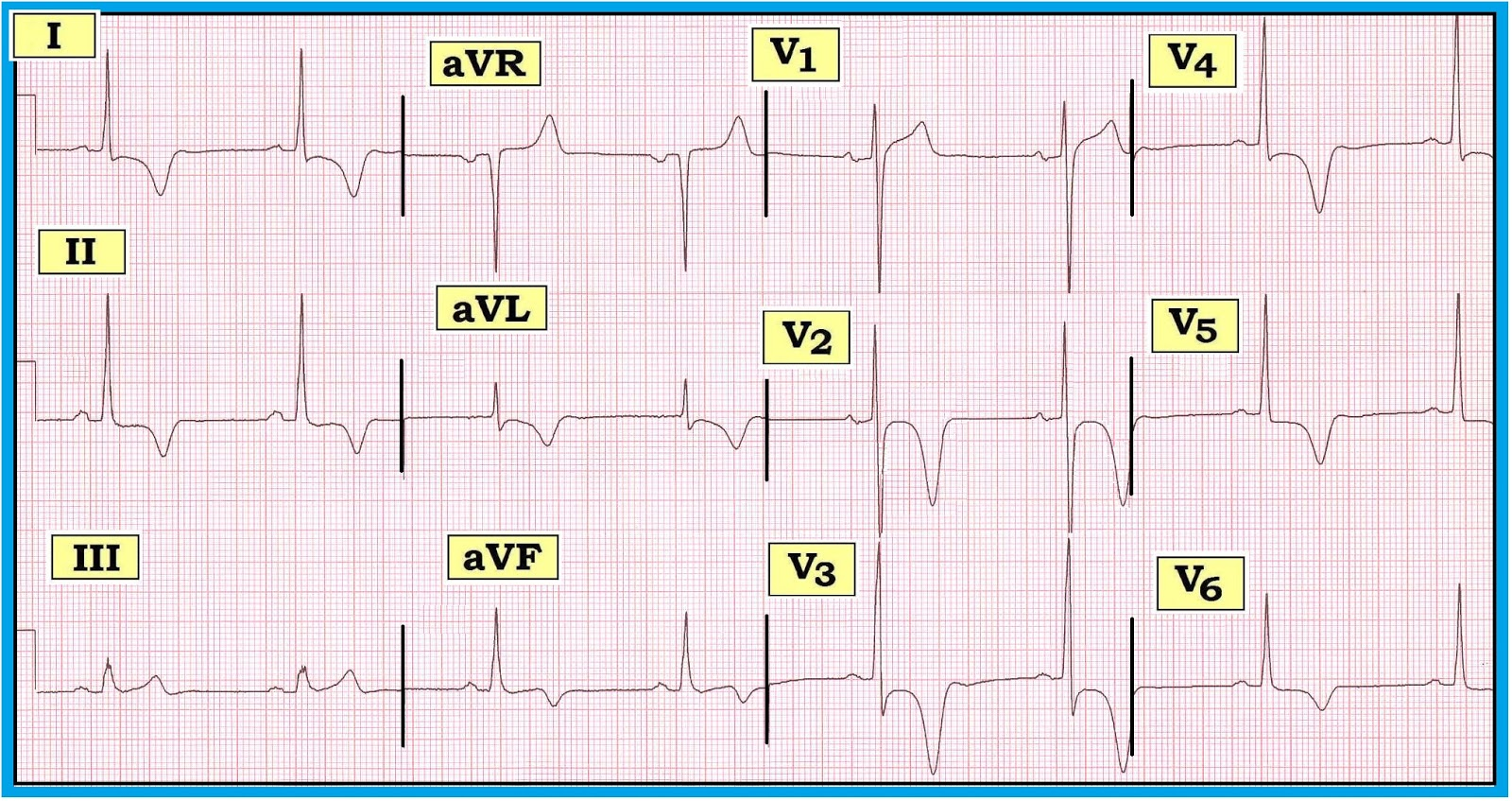 ECG Interpretation: January 2013