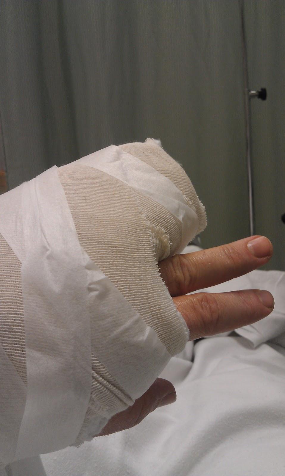Bandaged+hand.jpg