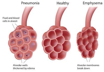 infected mucus fills the alveoli