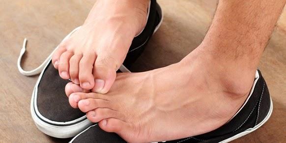 Tips Menghindari Bau Kaki Yang Disebabkan Oleh Sepatu