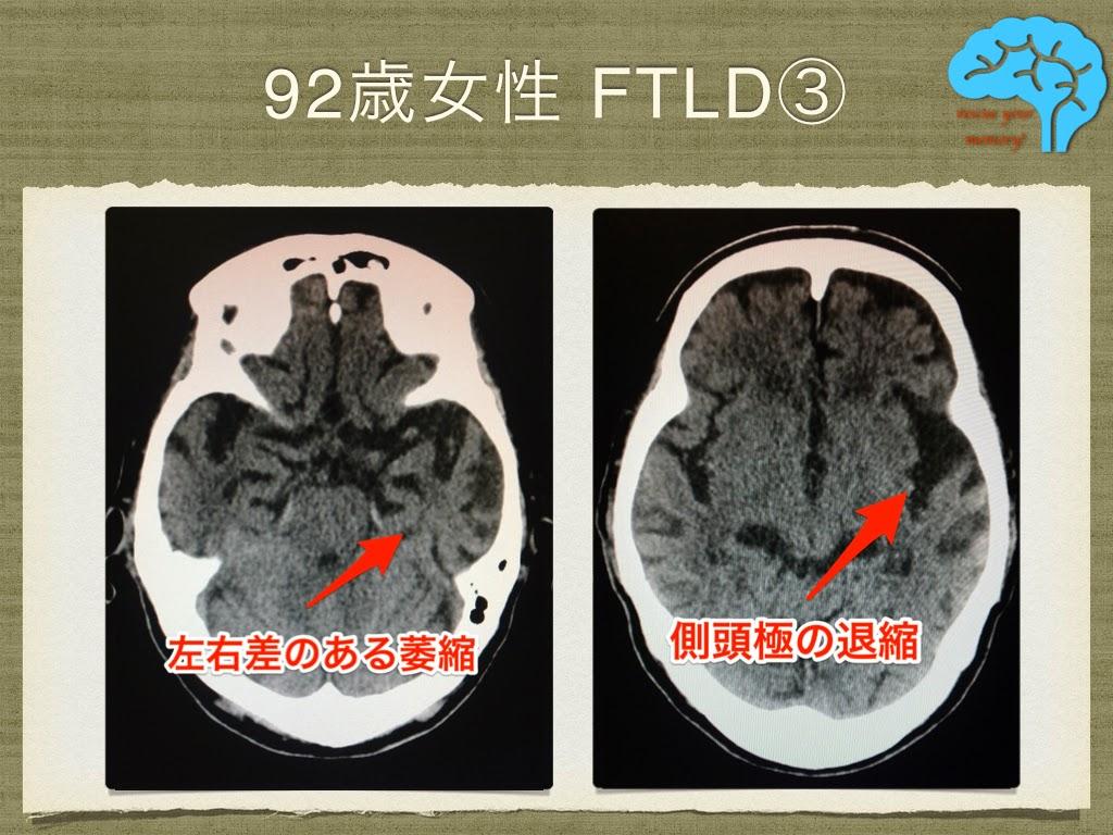 意味性認知症 92歳女性 頭部CT画像