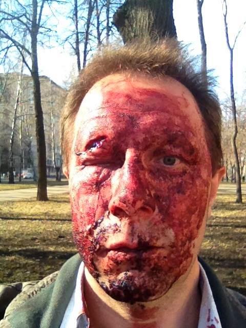 Избит депутат Гагаринского района Сергей Дорофеев
