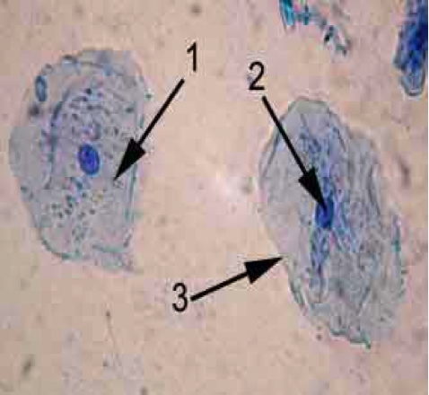 cheek cells Dna is extracted from human cells for a variety of reasons with a pure sample of dna you can test a newborn for a genetic disease, analyze forensic evidence, or study a gene involved in.