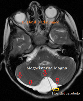 Magna+72.png