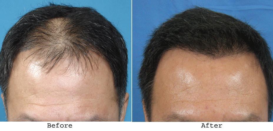 Hair Transplant Remedy