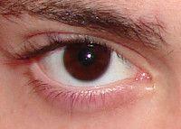 Ojo marrón o castaño