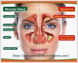 Cara Mengobati Penyakit Sinusitis Secara Tradisional