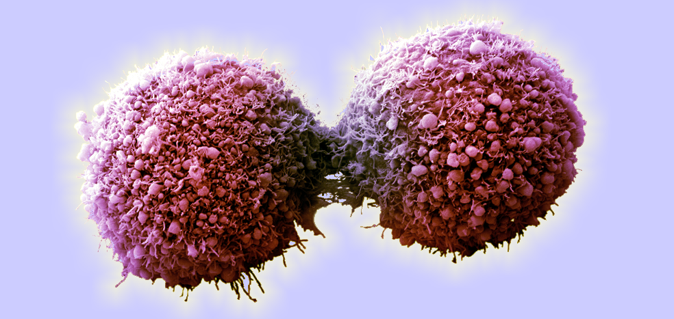 Cancer Cells Changed Back to Normal Cells