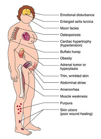 prednisone while pregnant