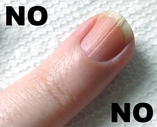 FootSmart Blog » Why do my Toenails Crack Down the Middle?