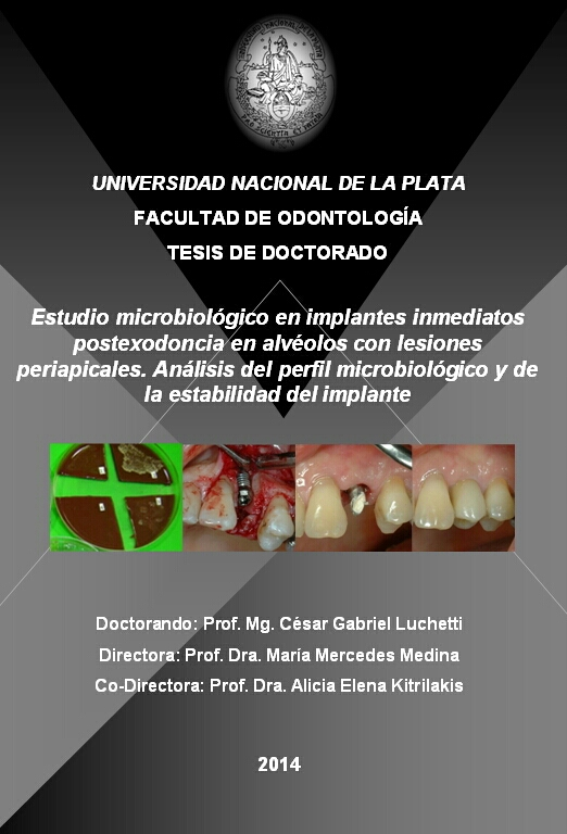 thesis dental implants The nuiances of thesis write both international and national students have the right to apply our dissertation providers include having the ability to speak with the author during the.