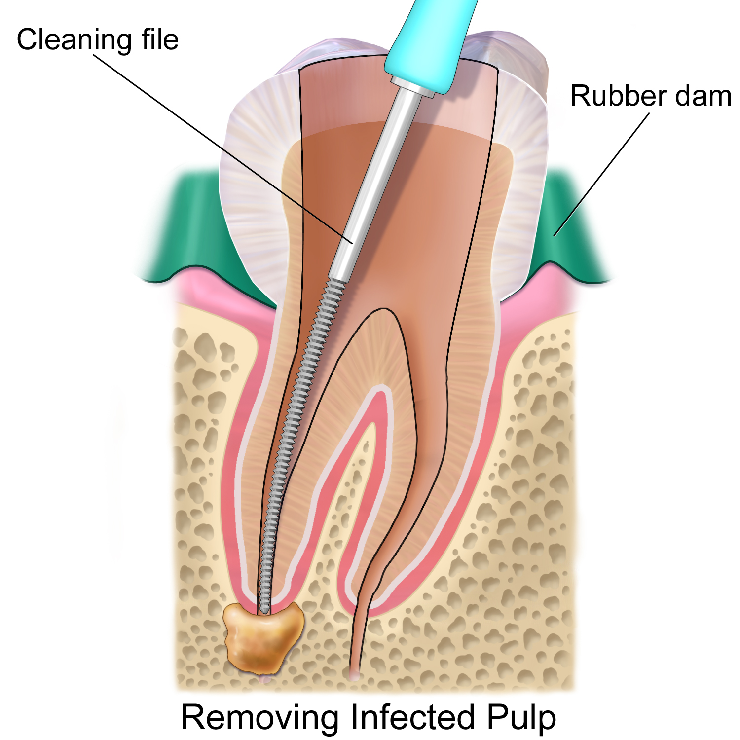http://drmahendras.com/treatments/root-canal-treatments/