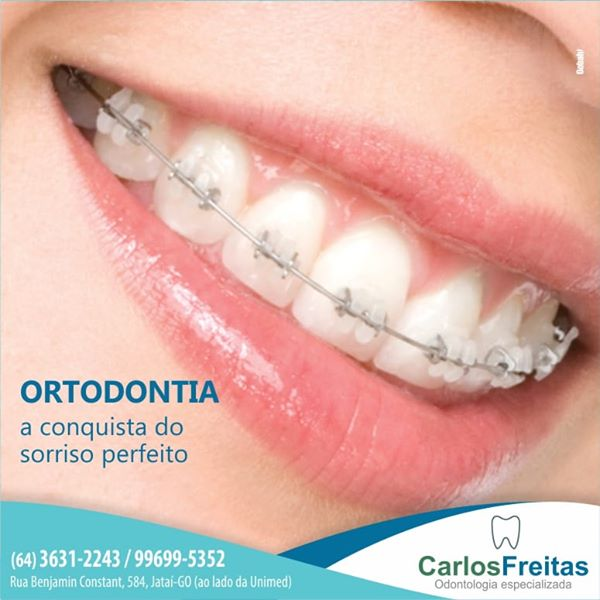 Dr. Carlos Freitas - Especialista em ortodontia
