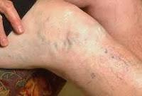 diferentes-tipos-de-venas-varicosas
