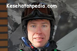 Bahaya memakai helm kotor bagi kesehatan kulit kepala & rambut