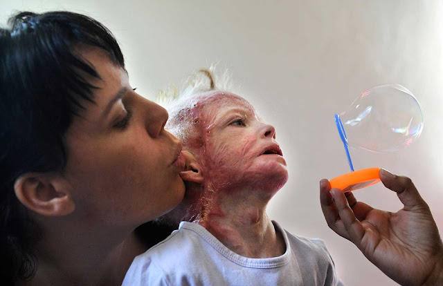 Skin Transplant!