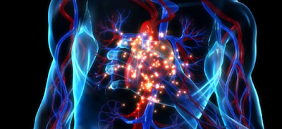 How to recognize the difference between a stroke, a heart attack and a stroke