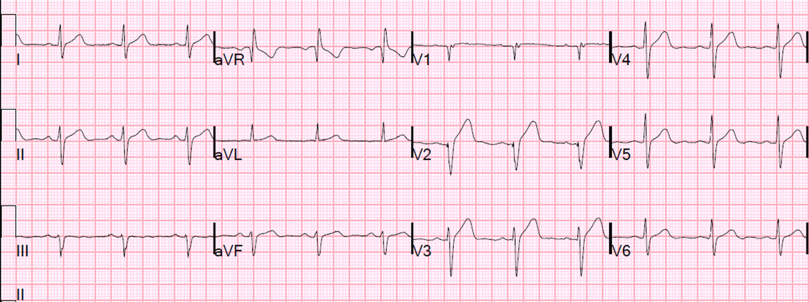 37 yo with 1.5 hours of burning chest pain