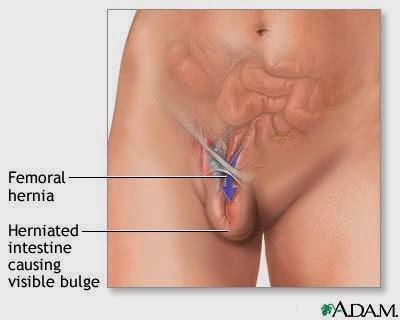 Bahaya Penyakit Hernia atau Turun Bero