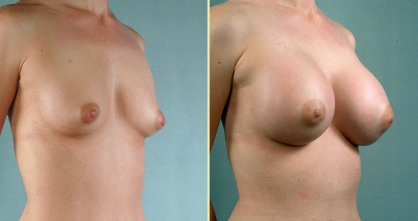 Male herbal breast enlargement forum