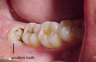 Home Remedy For Dog Tooth Pain