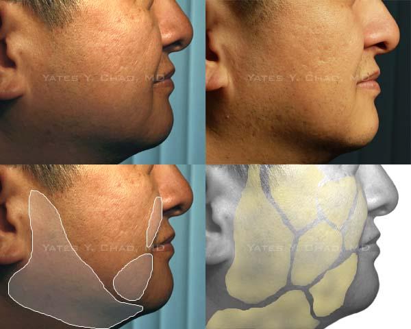 塑顏電波(Thermage DC Tip)的臉部脂肪雕塑效果