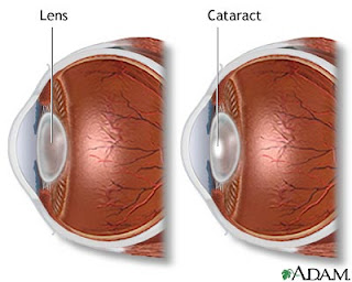 Nursing Intervention for Cataract Nursing Care Plan for Cataract