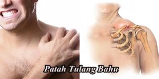 http://obatmujarabjerawat.blogspot.co.id/2015/10/obat-mujarab-patah-tulang.html
