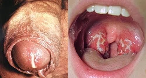 obat sakit gonore