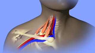 Fisioterapeuta: aprenda a fazer Mobilização Neural