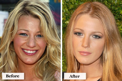 Blake Lively Nose on Blake Lively Nose Job Before And After