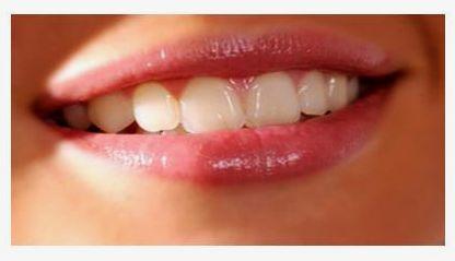 Cara tepat memerahkan bibir secara alami adalah menggunakan resep ...