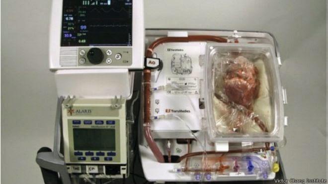 """جراحون يزرعون """"قلبا ميتا"""" بعد إنعاشه"""
