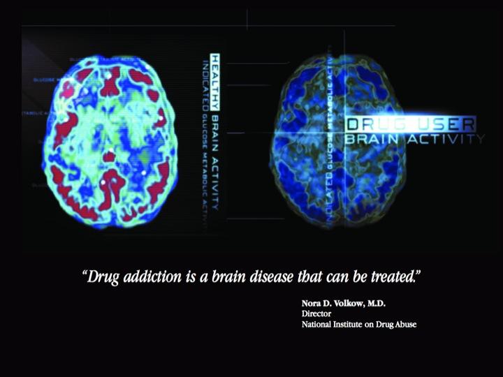 Neurobiolog 237 A De La Adicci 243 N