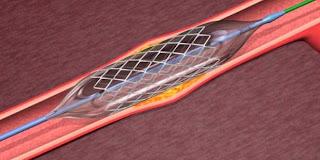 Indikasi Pasien Dipasang Cincin Stent Jantung