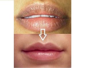 http://mustahabbah.blogspot.com/2015/12/cara-mudah-menghilangkan-bibir-hitam.html