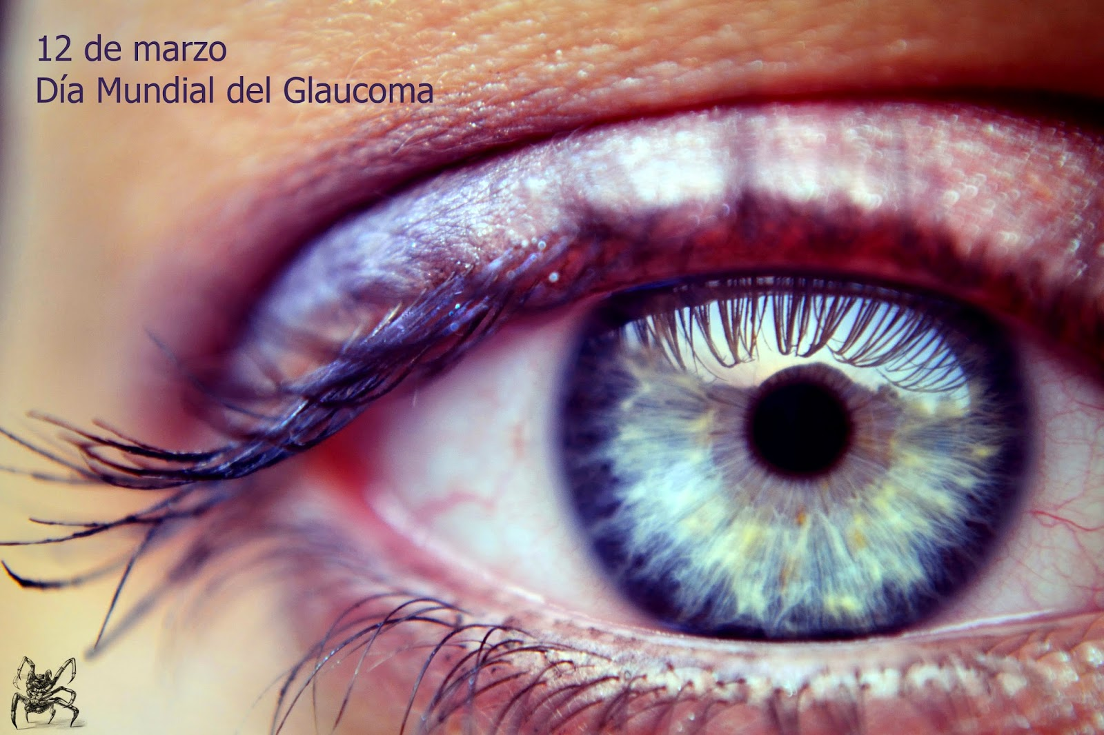 12 de marzo, día mundial del gloucoma