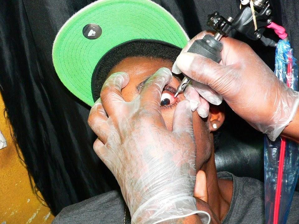 Prix pour faire enlever un tatouage Dr Walter Leys Saint  - faire enlever un tatouage