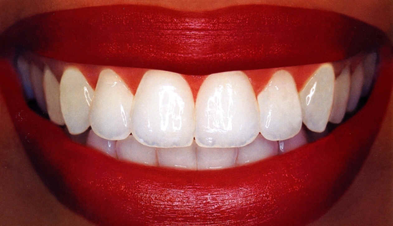 How to get your teeth super white in a week