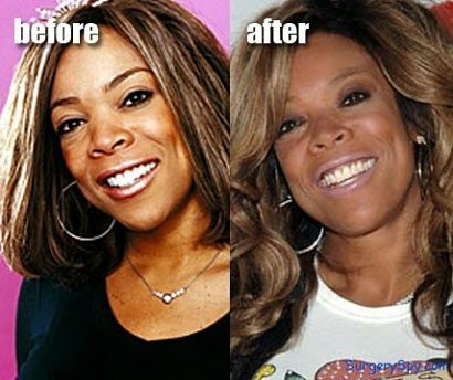 Wendy William Plastic Surgery Before and After